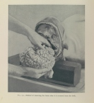 Examination of the skull and brain method of removing the brain after it is severed from the body - Henry W. Cattell, 1903